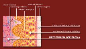 mezoterapia bezigłowa - działanie